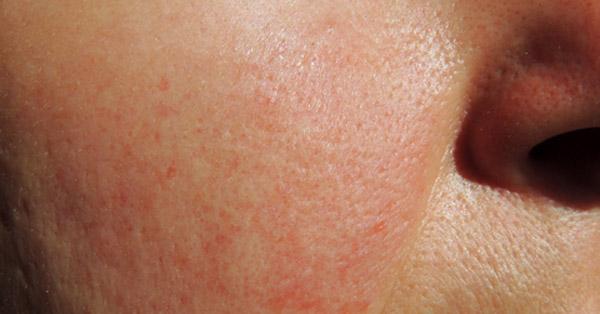 Vörös viszkető foltok az ajkak sarkában, Dr. Tóth Gyöngyi válasza a herpesz témában