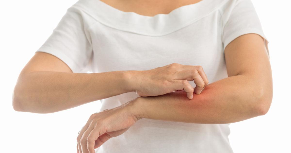bőrbetegségek vörös folt a lábán