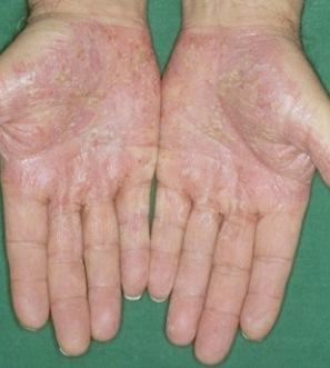 pikkelysömör fotó okozza a kezelst vörös foltok jelentek meg a bőrön