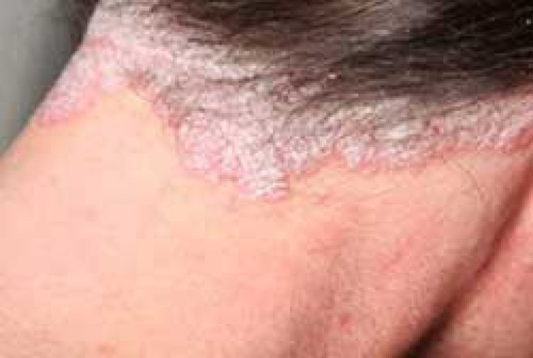hogyan lehet eltávolítani a lepedék pikkelysömörét a testen inverse psoriasis natural treatment