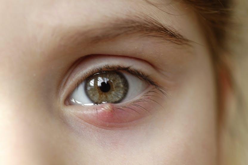 Mitől viszkethet a szemhéj? - EgészségKalauz, Vörös foltok a szemhéjon, mint kezelni