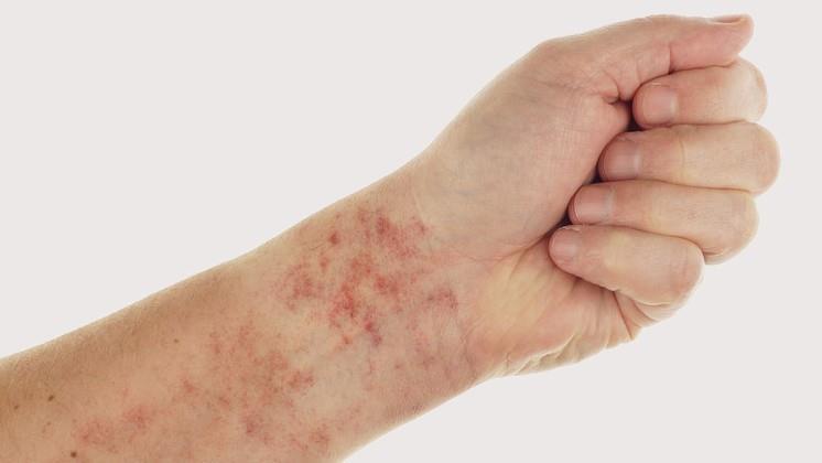 vörös foltok a lábak bőrén fotó