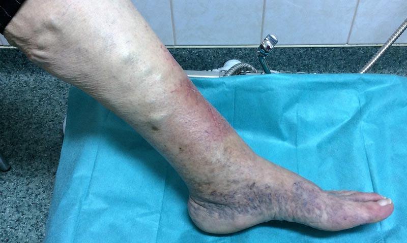 a láb duzzanata vörös foltokkal