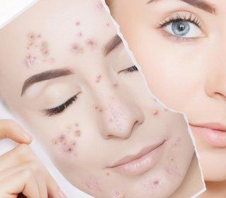 gél egészséges bőr pikkelysömörről vélemények