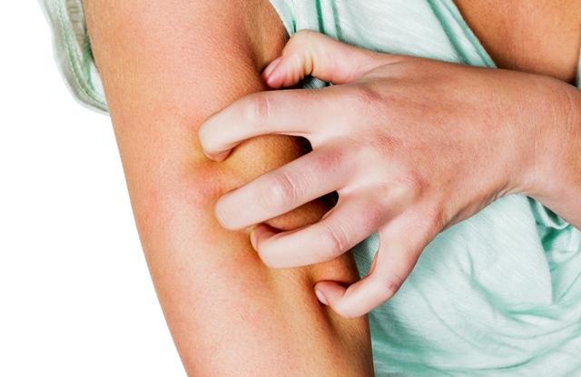 hogyan kell kezelni a pikkelysmr terhessg alatt sűrű vörös foltok jelentek meg a lábakon