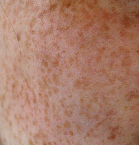 rheumatoid arthritis vörös foltok a lábakon)