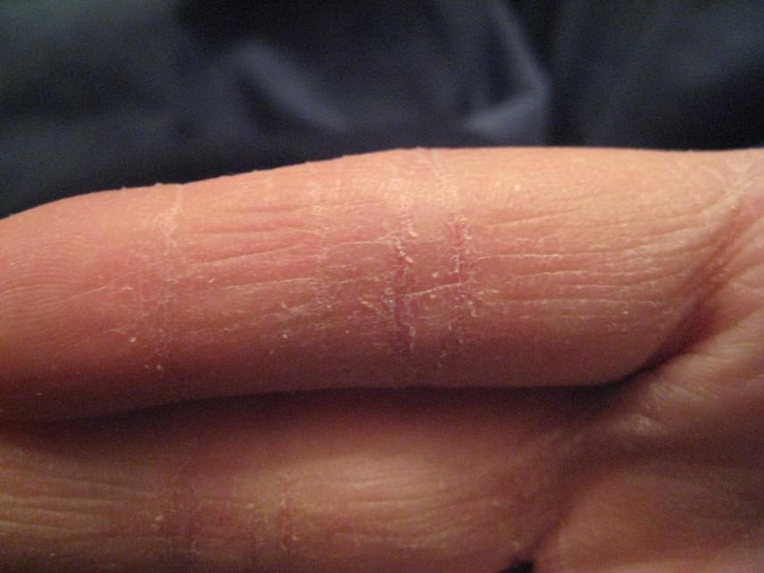 Miután az arcot vörös foltokkal tisztította. Akne - pattanásos bőr tünetei és kezelése