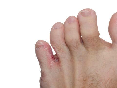 vörös foltok az ujjak és a lábujjak hegyén
