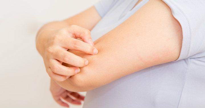 Pikkelysömör: mit kell tudni a bőrgyulladásról?