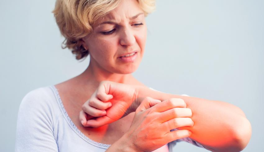 milyen kenőcsök alkalmazhatók pikkelysömörhöz vörös foltok a testen viszket fénykép hogyan kell kezelni