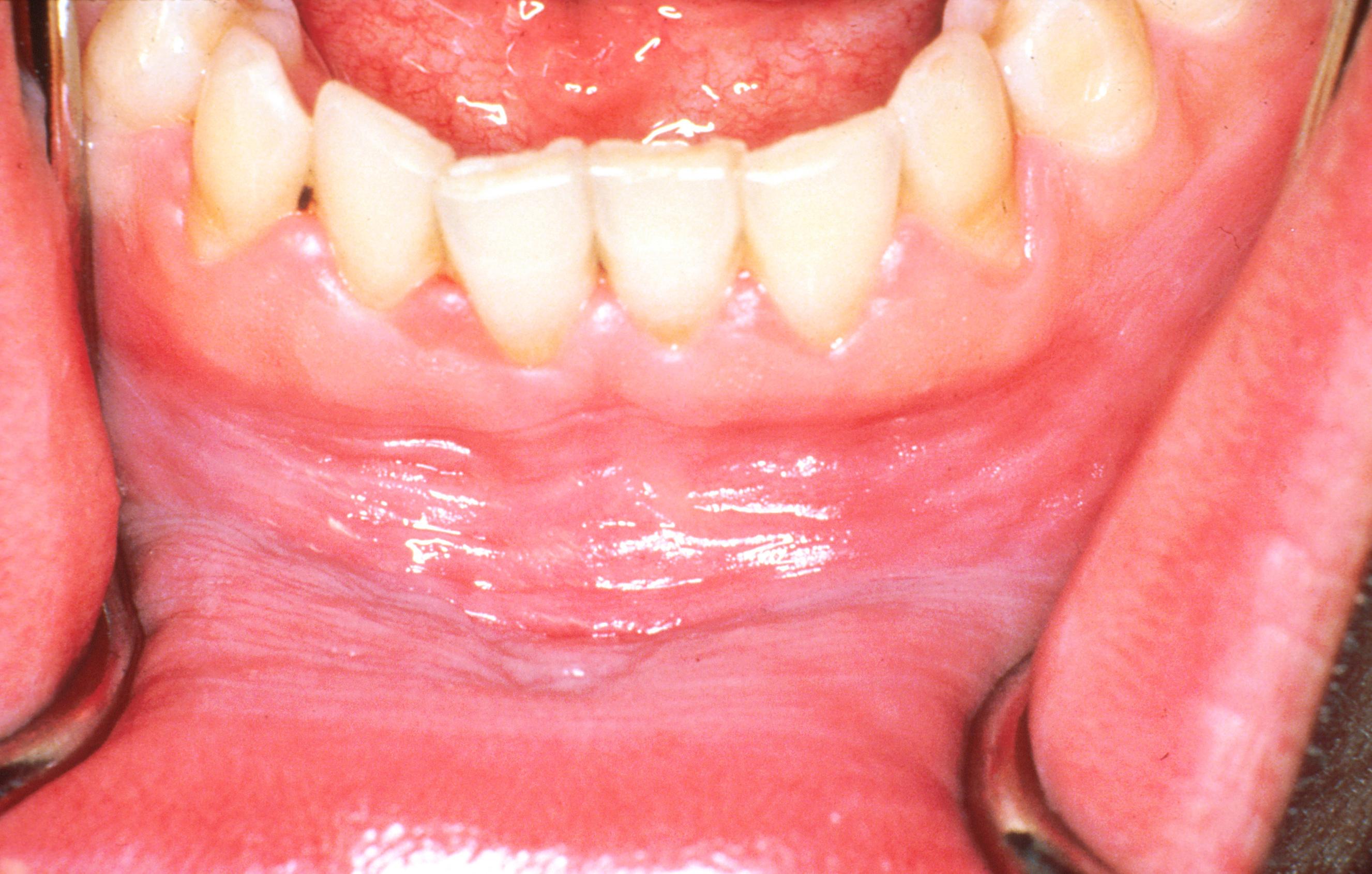 nepszabadsámakeup4u.hu: Apró piros foltok a szájban (2) – Semmelweis Médiasarok