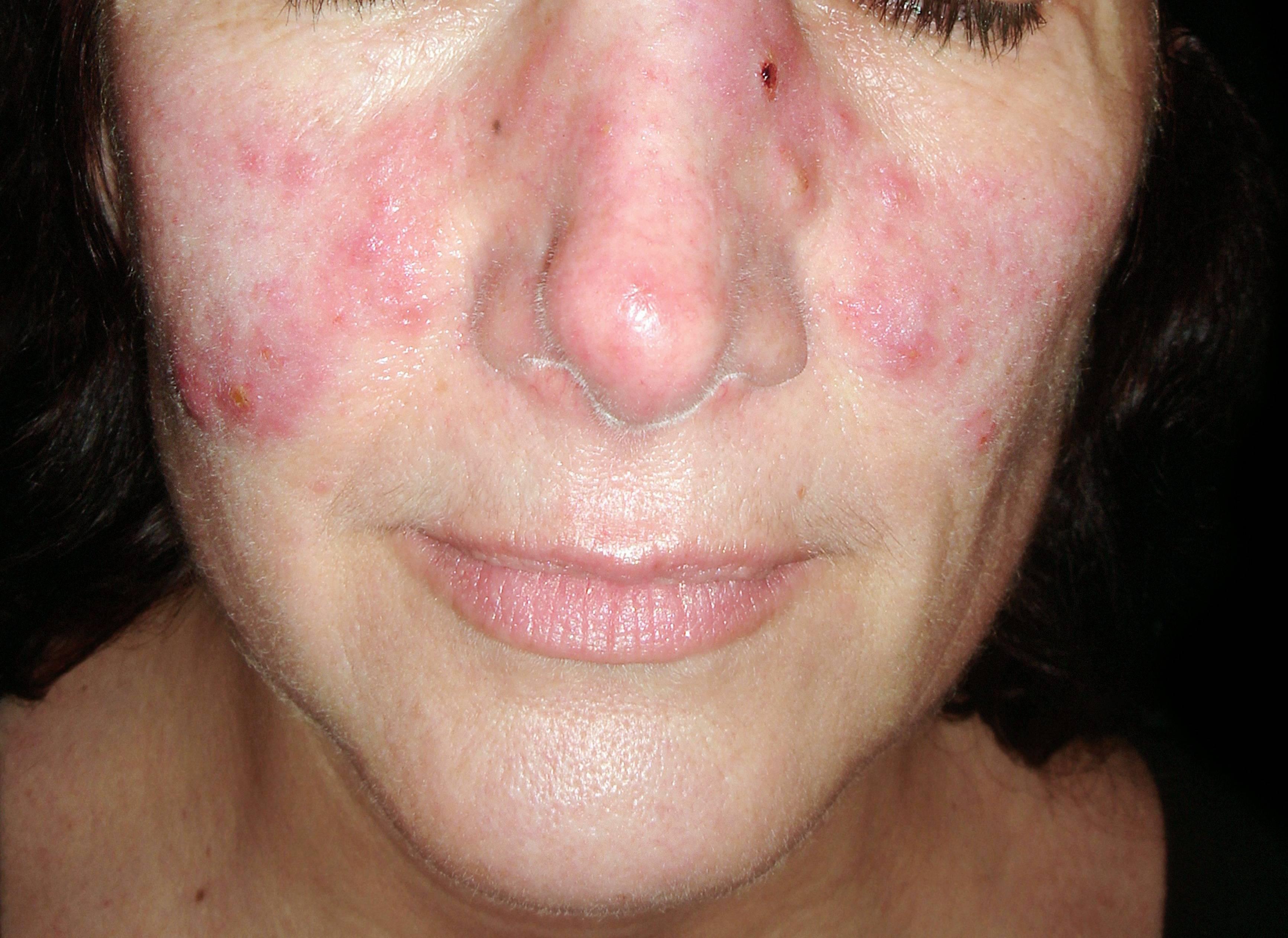 vörös foltok jelentek meg a szem körüli arcon