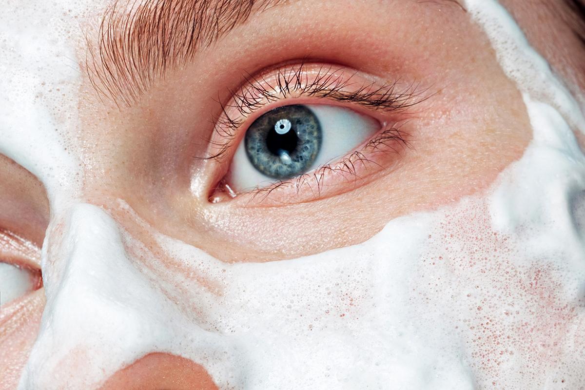 Miért jelennek meg vörös foltok az arcon? a szem alatti vörös foltok kezelése