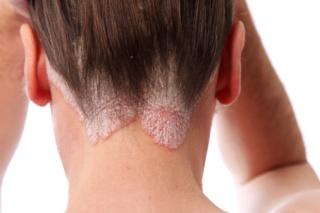 hogyan kell kezelni a pikkelysömör gyógyszereit vörös foltok a bőrön és köhögés