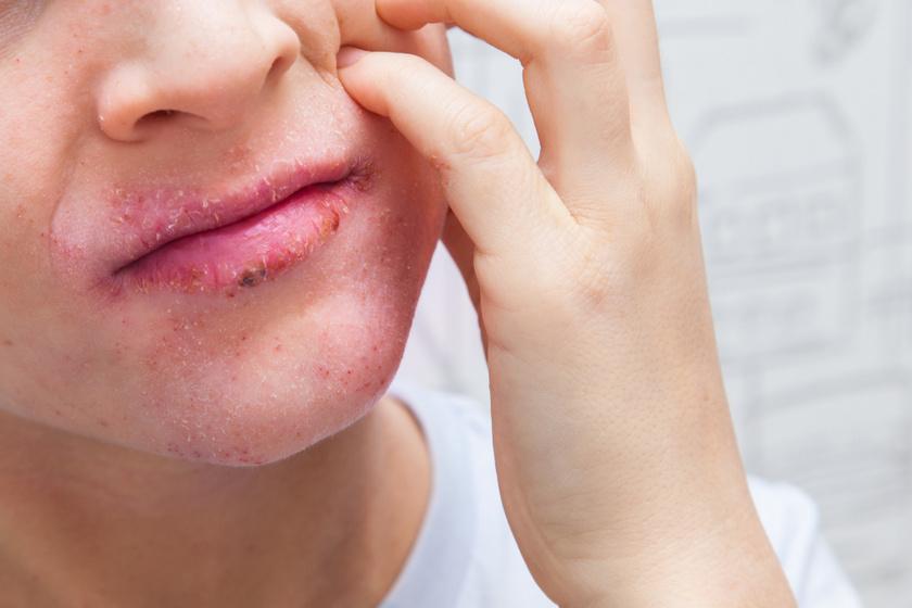 Bőrbetegségek