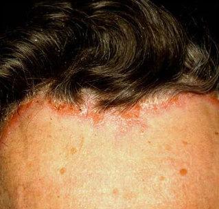 fejbőr pikkelysömör népi gyógymódokkal