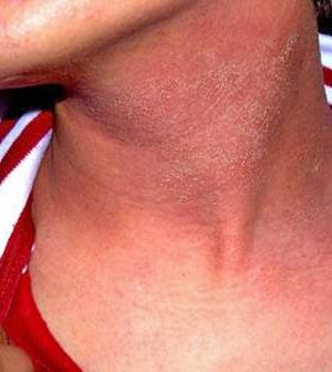 vörös pikkelyes foltok az orrán és a szemöldökén vörös foltok az egész testben erek viszketnek