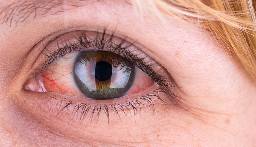 az arcbőr leválik a vörös foltokról a pikkelysömör kezelése besugárzó nap