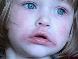 hogyan kell kezelni a száj körüli vörös foltokat