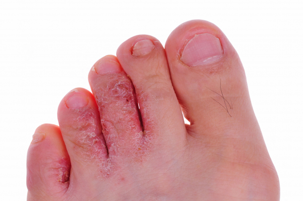 lábujj gomba vörös folt a lábakon