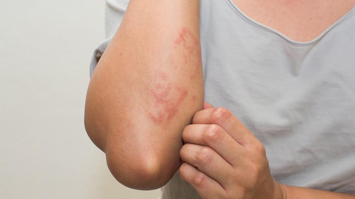 vörös folt kéreggel a lábán egyenletes vörös folt a bőrön