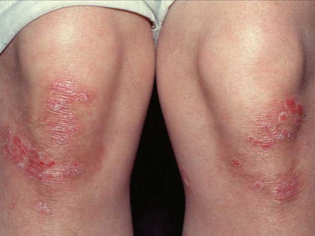 Szalicilsav psoriasis