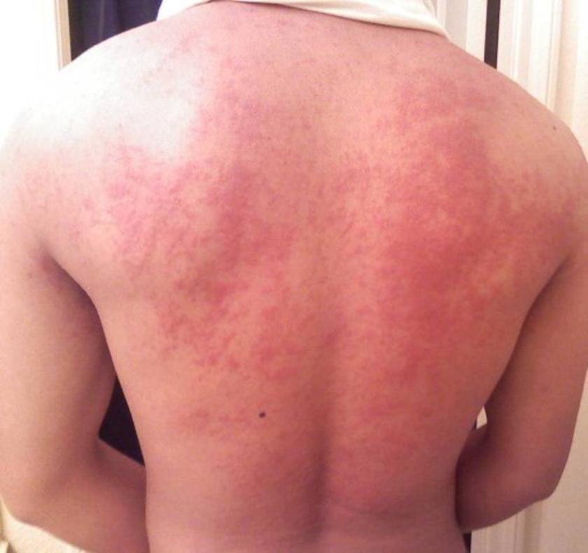 a bőrt vörös foltok borítják a testen