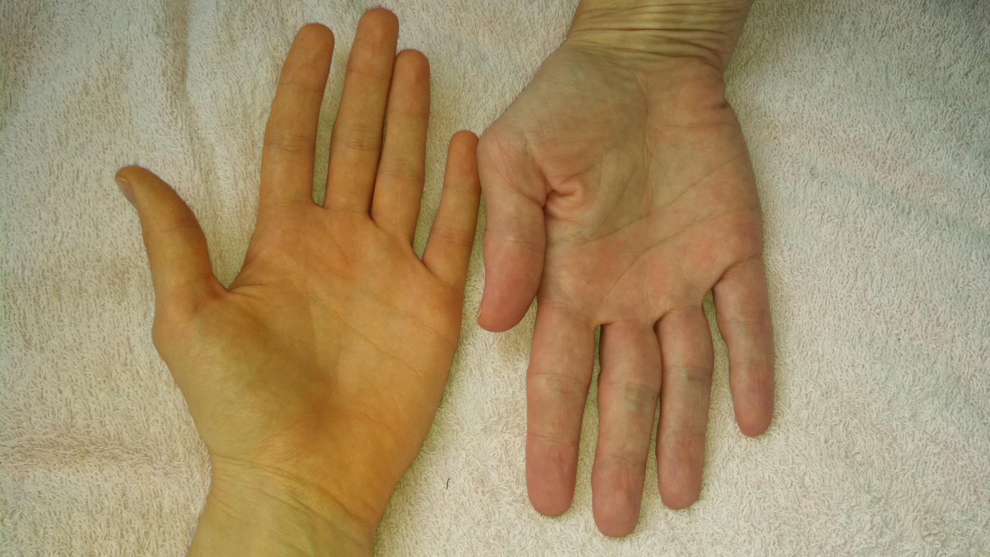 pikkelysömör kezelése a legjobb, ha alkalmazzuk viszkető vörös foltok a lábujjak között