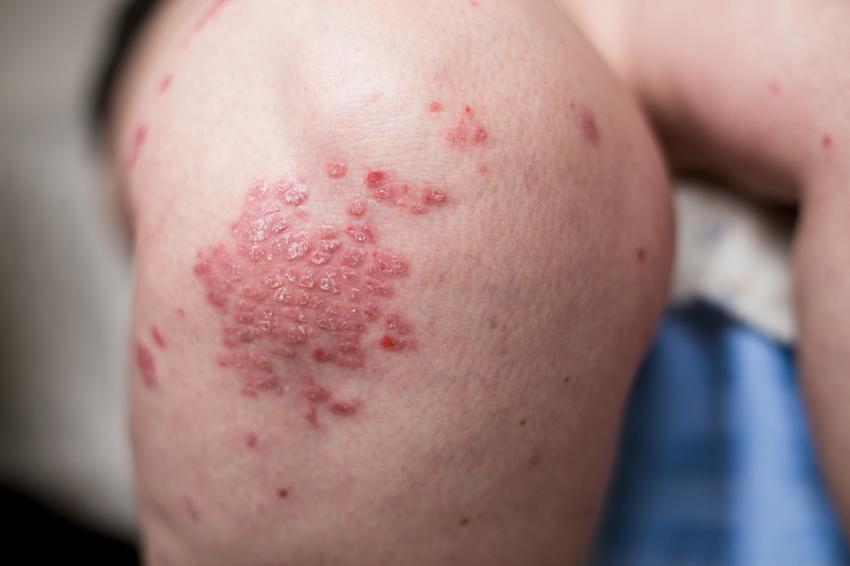 pikkelysömör kezelésére gyógynövények viszkető folt a bőrön kerek piros
