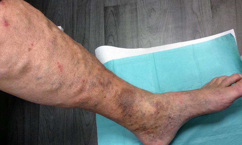 Vörös foltok a lábakon: a megjelenés okai - Megelőzés
