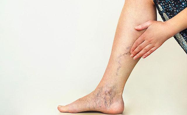 fáj a lábán egy piros folt