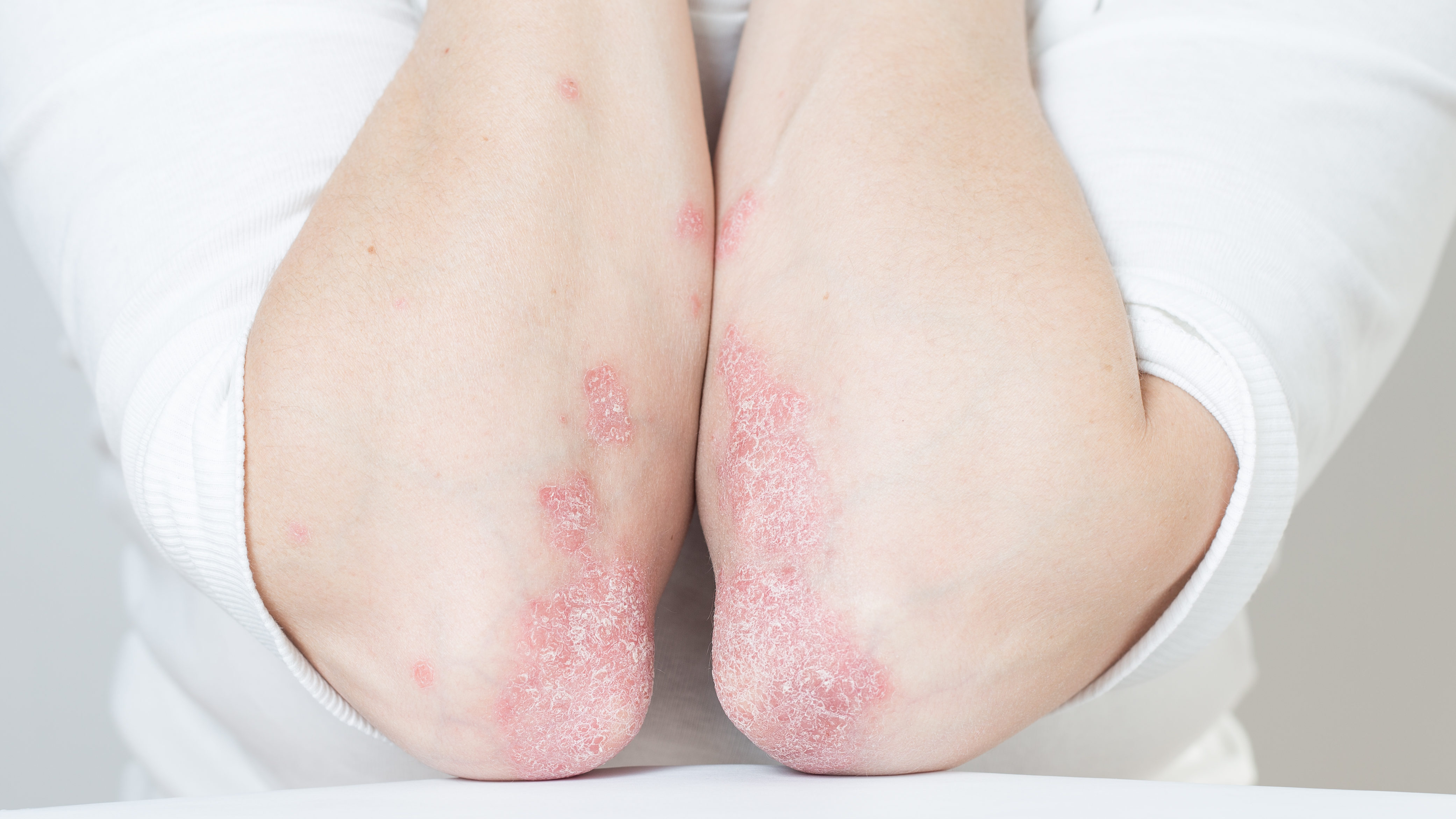 fotó piros folt a lábán Indiai hagyma pikkelysömör kezelése