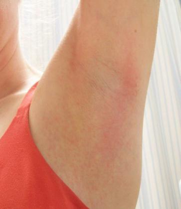 hogyan lehet eltávolítani a hónalj vörös foltjait