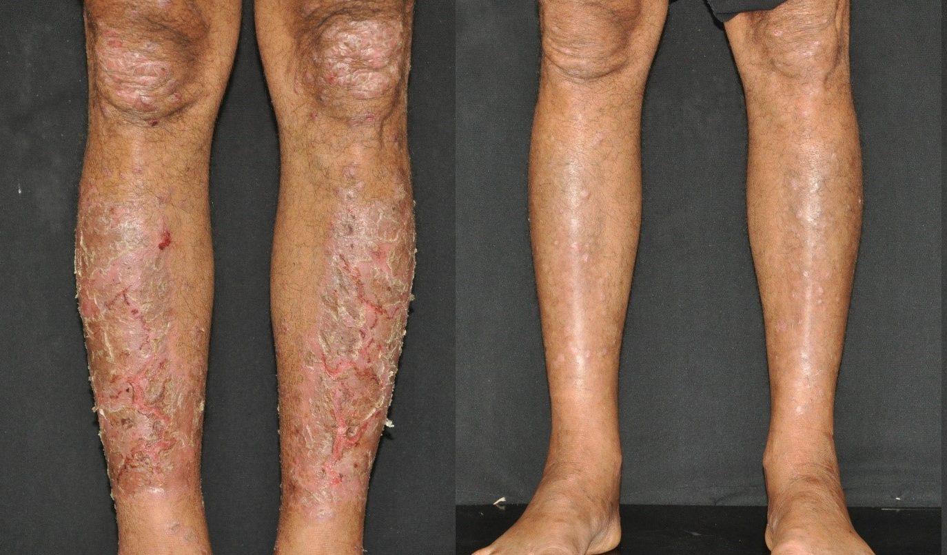 hogyan kell kezelni a láb pikkelysömörét)