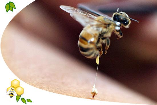 méhek kezelése pikkelysömörhöz