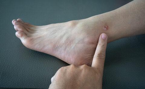 mit kell tennie egy piros folt a lábán