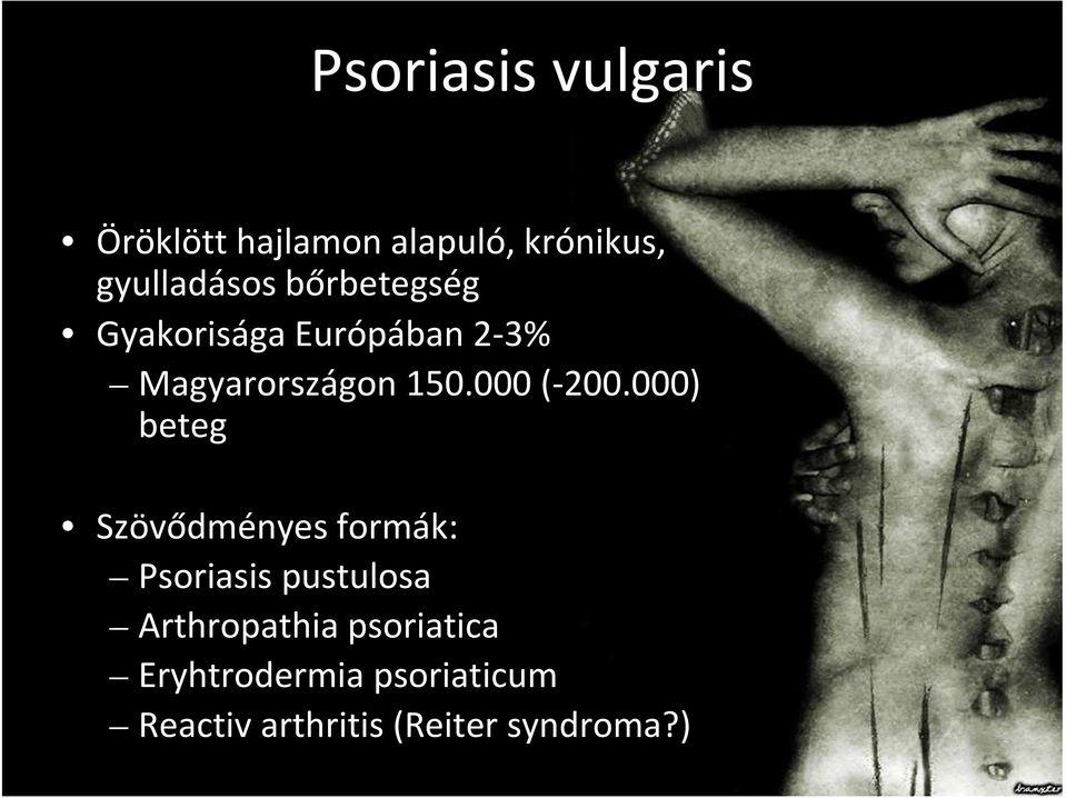 német psoriasis kezelése