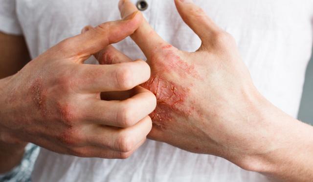Pikkelysömör Világnap a Bőrklinikán   Bőr-, Nemikórtani és Bőronkológiai Klinika