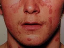 hogyan lehet pikkelysömör kezelésére az arcon otthon vörös foltok a hason és a karokon