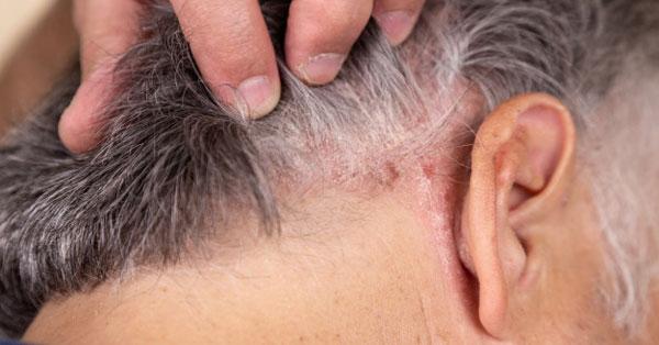 pikkelysömör kezelés okai a homlokán vörös foltok hámlanak és viszketnek