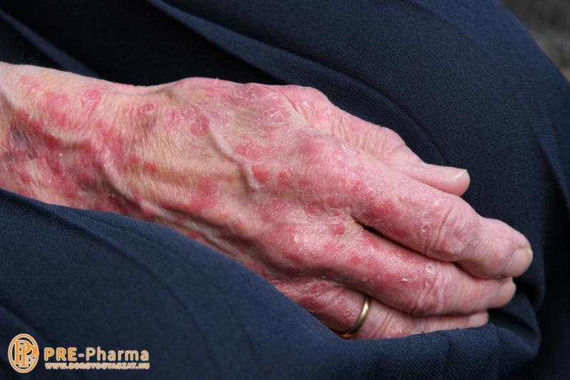 pikkelysömör kezelése a fején hideg vízzel vörös foltok a testen viszketés és hámlás
