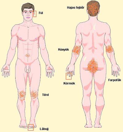különféle vörös foltok a bőrön vkkupchin pikkelysömör kezelése