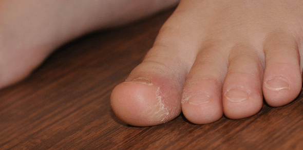 a lábujjakon lévő piros foltok gombák pikkelysömör a nyelv kezelsre