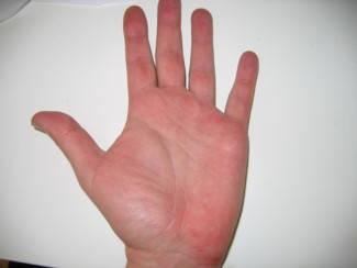 vörös pikkelyes foltok az ujjak között)