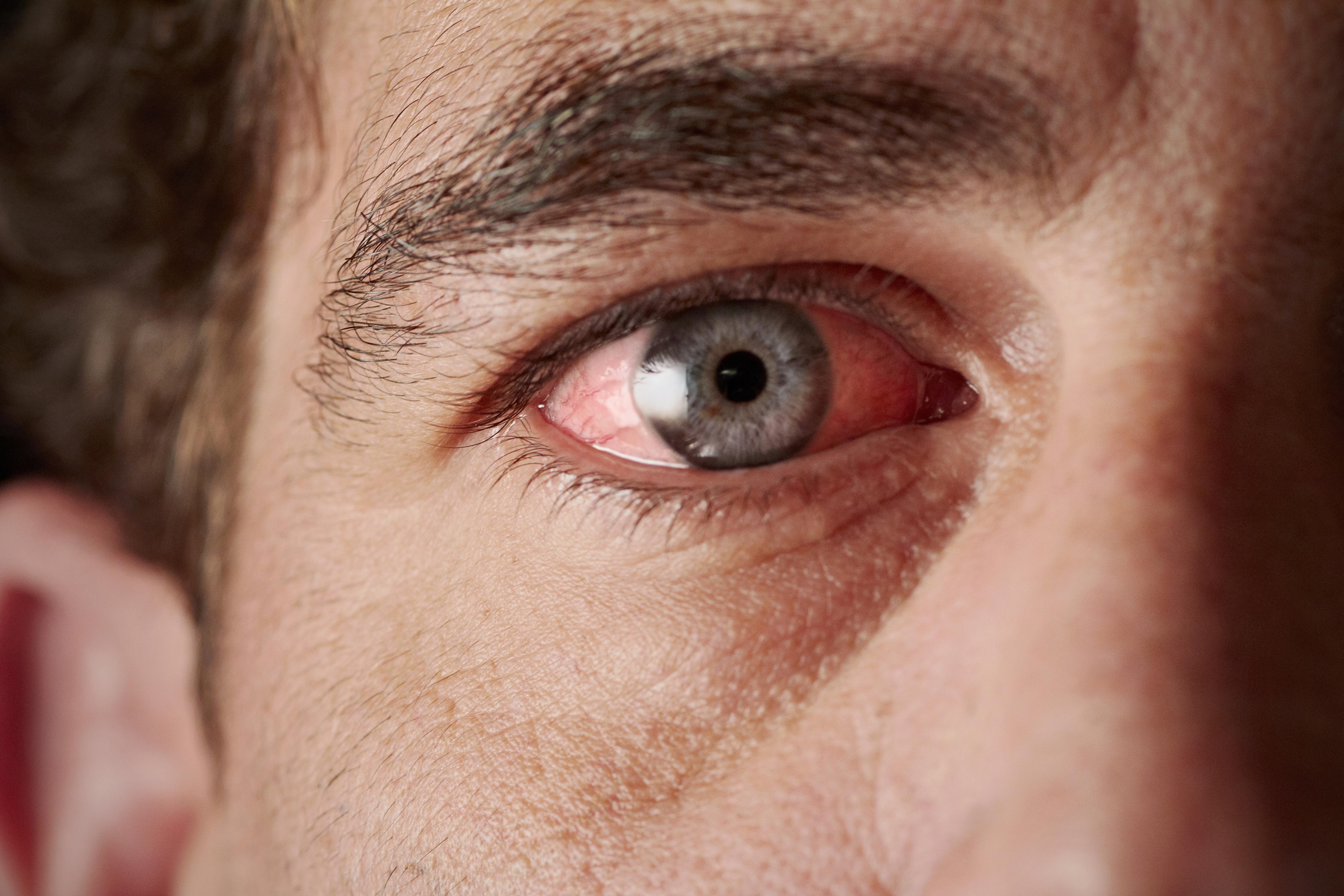 vörös folt jelent meg a szemhéjon, mint kezelni