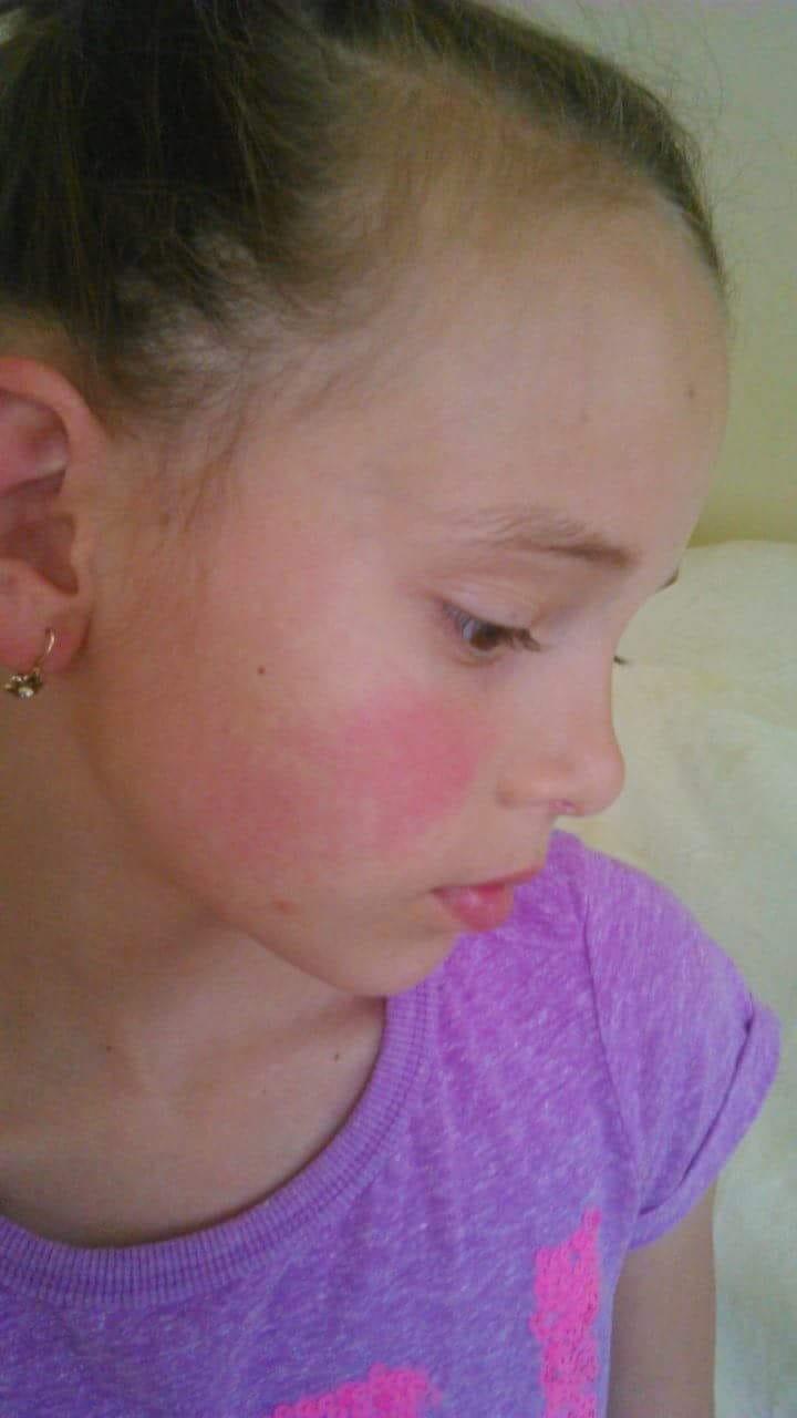 A felnőtteknél a fülek mögötti kiütés