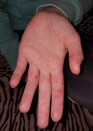 vörös foltok az ujjakon a bőr alatt)