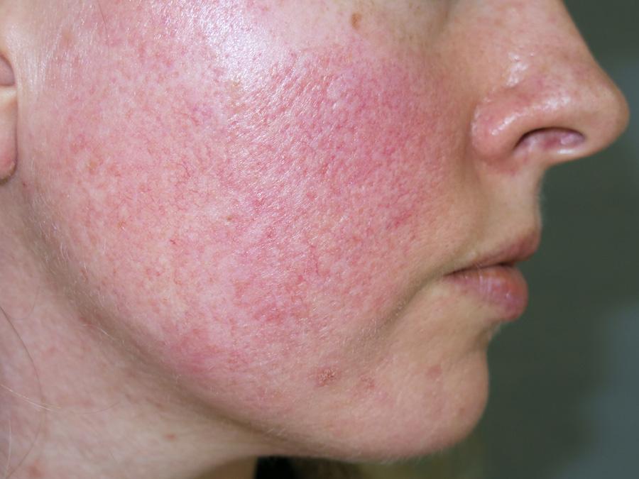 papuláris plakk pikkelysömör kezelése hogyan kell kezelni a bőrfoltokat a vörös foltok